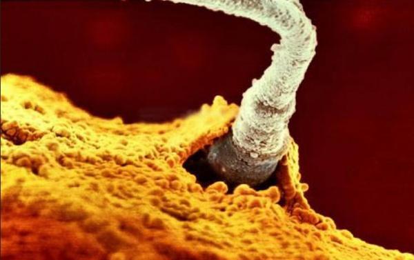 Один из 200 миллионов отцовских сперматозоидов прорвал оболочку яйцеклетки