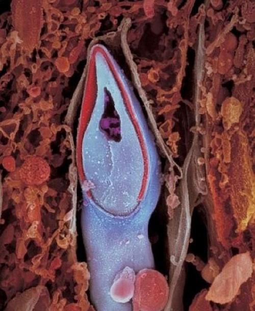 Сперматозоид в разрезе. В головке содержится весь генетический материал.