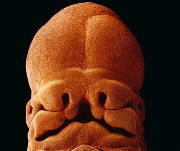 5 недель, длина 9 мм, уже угадывается лицо с отверстиями для рта, ноздрей и глаз