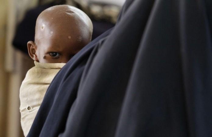 ООН дети в Мали тысячами умирают от голода