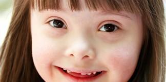 21 марта: Международный день человека с синдромом Дауна